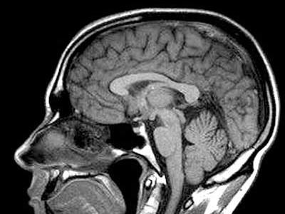 B) Otro cerebro con RM.