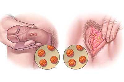magen modificada de: https://vistoenlaweb.org/2013/07/19/10-cosas- que-debes-saber-sobre-el-virus-del-papiloma-humano-vph/