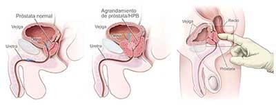 causas del engrosamiento de la prostata